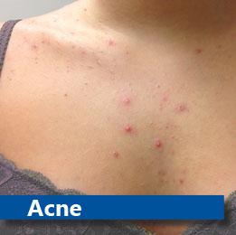 Therapie bij acne