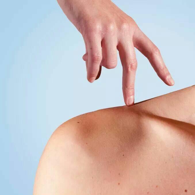 De huidtherapeut behandelt huidproblemen zoals littekens, onderhuidse vochtproblemen en pigmentvlekken