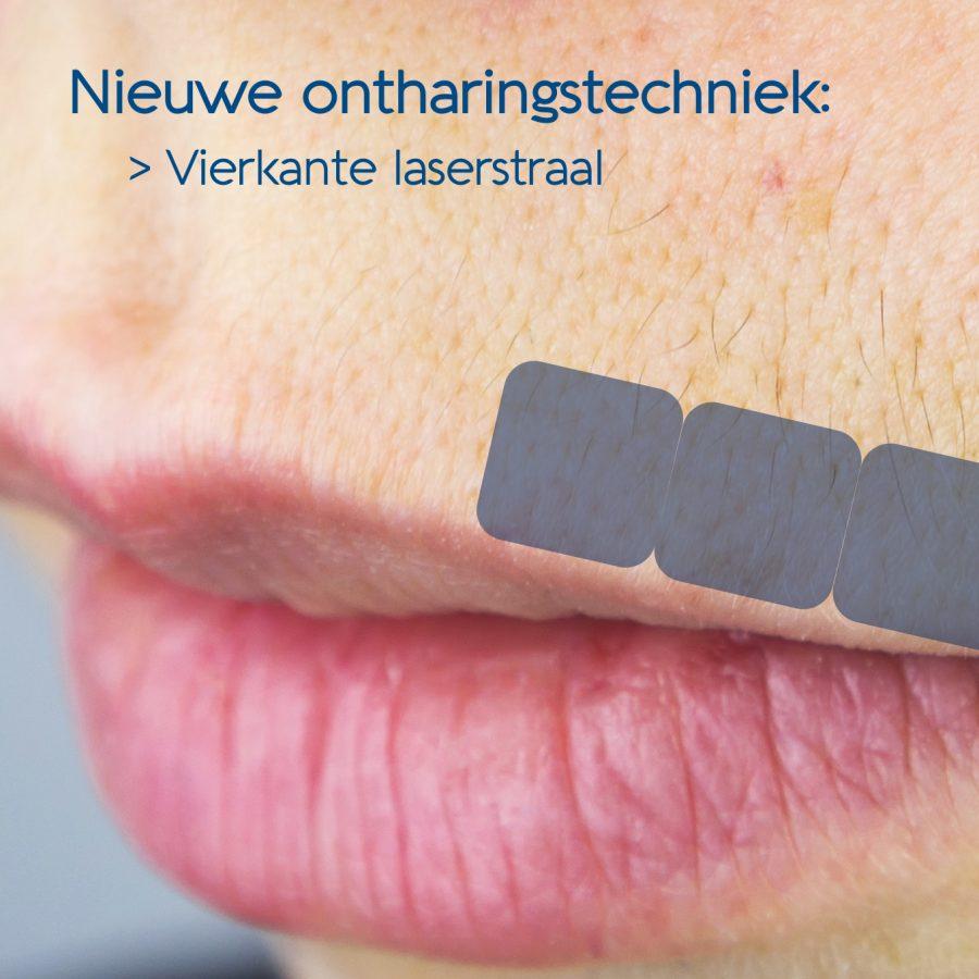 Behandeling van de bovenlip met een vierkante laserstraal