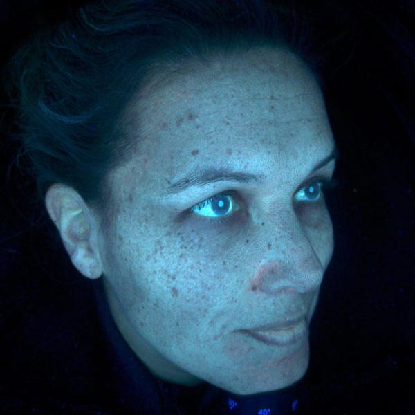 huidanalyse observ 520x
